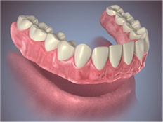 Conventional or Immediate Full Denture